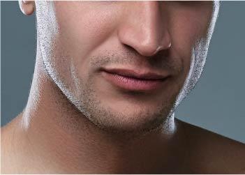 Depilación Láser Diodo – Hombre – Delineado Barba (Pómulos (XS) + Cuello (S))